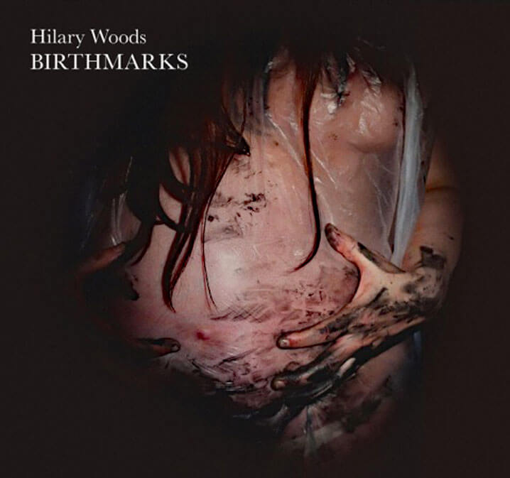 Hilary-Woods-Birthmarks